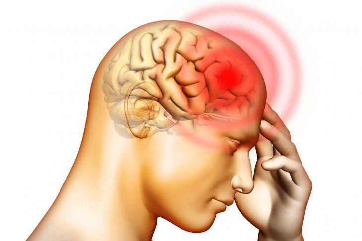 Dolor de cabeza intenso