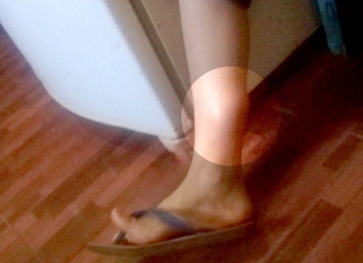 DOLOROSO. El pequeño sufre por el dolor que le causó el proyectil en su pierna. Ni puede caminar bien