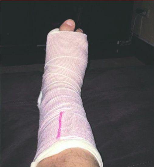 Luis tiene el pie enyesado y deberá reposar.