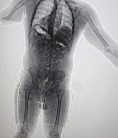 El scanner del aeropuerto le pilló en seco que llevaba más de 3 kilos de droga bajo al ropa.