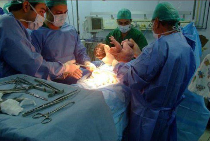 Los profesionales señalan que solo en casos muy necesarios se debe indicar la cesárea.