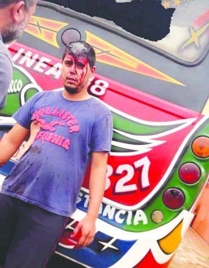 El chofer Rodrigo Duarte resultó con varias heridas en el cuerpo y la cabeza. El sujeto de remera bordó fue filmado disparando.
