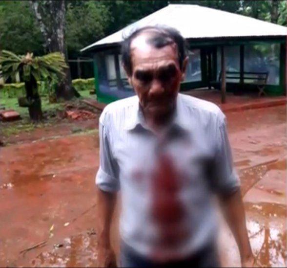 El señor de 67 años quedó gravemente herido.