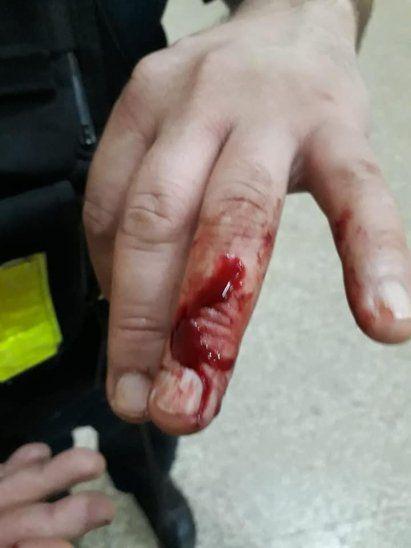 El suboficial Fabio Victorino Cáceres sufrió una herida a causa del mordisco.