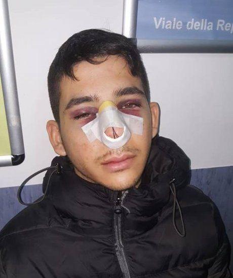 Así lo dejaron. El joven paraguayo está con graves secuelas