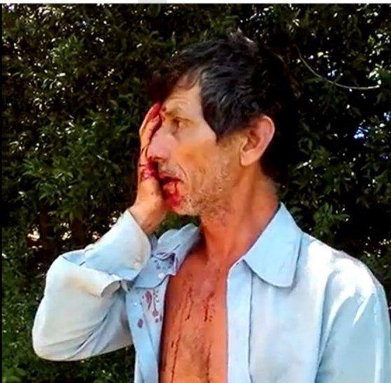 Don Facundo quedó con cortes en varias partes del rostro.