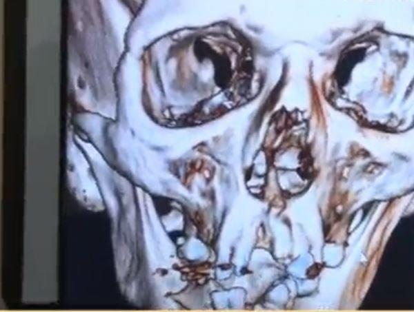 En el Hospital de Trauma mostraron la radiografía de la cara del paciente. Su rostro quedó destrozado.