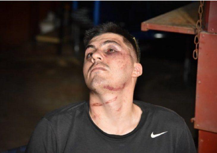 Lleno de Moretones: Así quedó Juan Manuel Gavilán luego de ser reducido por cuatro efectivos policiales