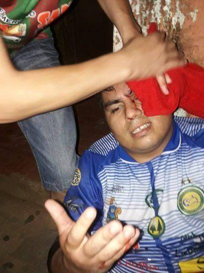 El arquero quedó herido.