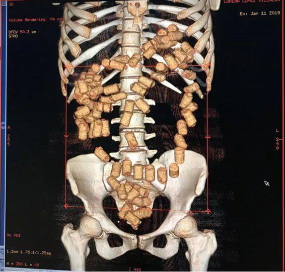 La Policía Federal divulgó la imagen captada por el escaner