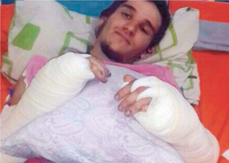 El joven debe entrar en cirugía para amputarle la mano derecha