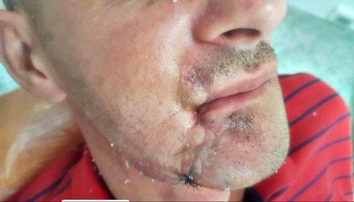 Reconstruyeron mandíbula del que se reventó la boca con cebollón