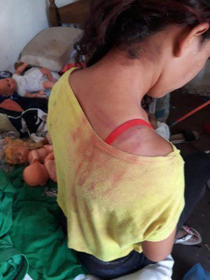 ESCOBAZOS. Andrea Carolina Cáceres recibió varios golpes en la espalda y hombro
