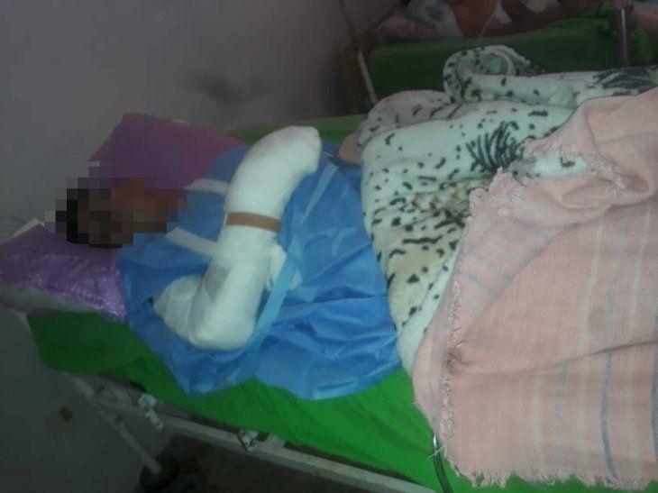 Alexis está internado en el Hospital de Trauma.