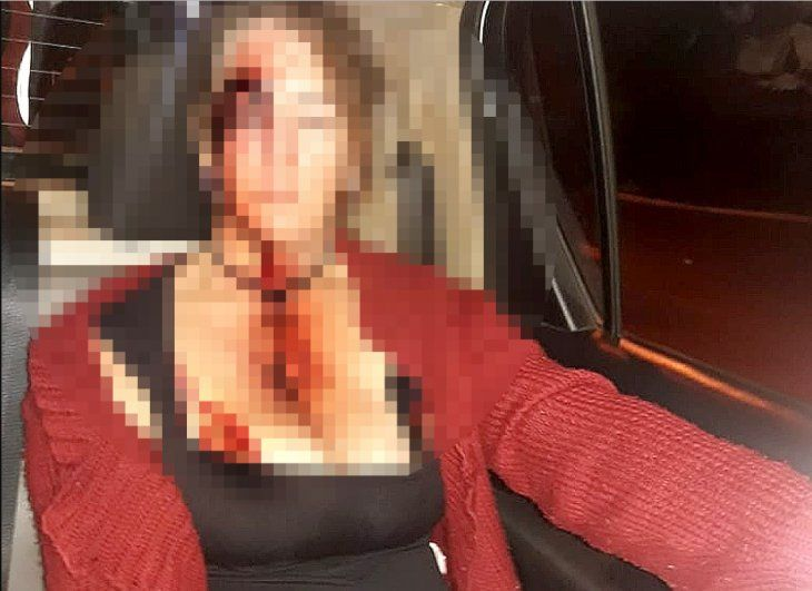 La mujer quedó con el rostro desfigurado.