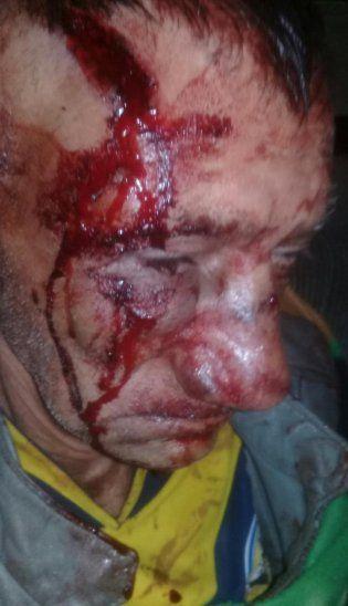 Casi desfiguraron a abuelito para robarle 400.000 guaraníes