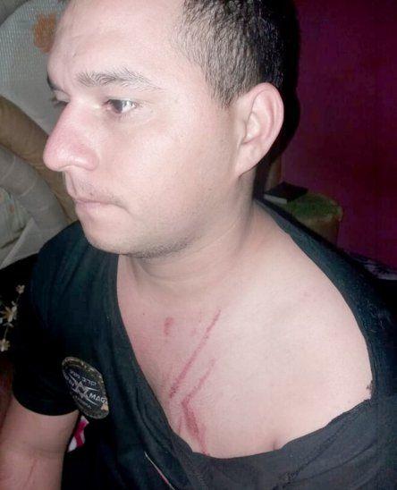 El joven quedó con marcas en su cuerpo tras los arañazos.