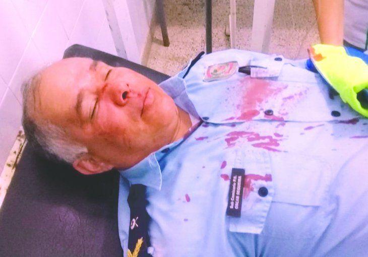 Con la nariz rota terminó el comisario de Yaguarón