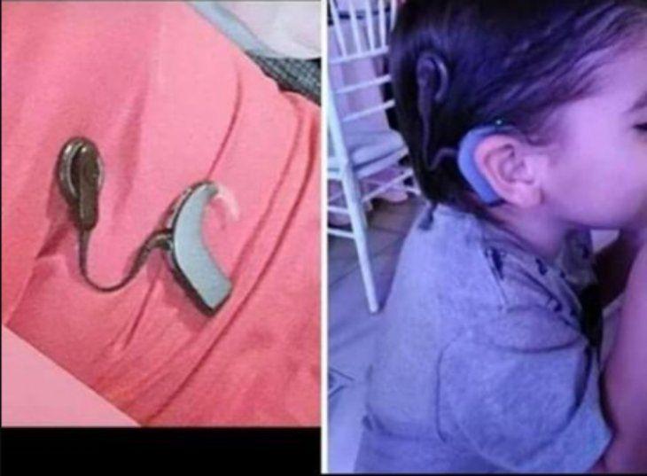 El niño no escucha sin el aparato.