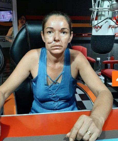 Johanna Mencia contó que todo pasó el pasado 17.