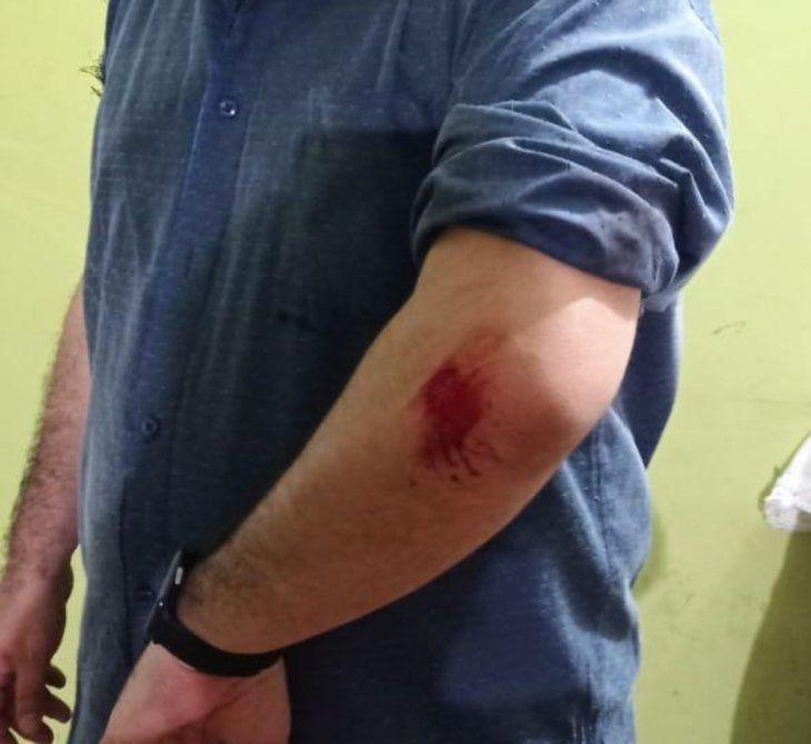 Algunos concejales terminaron con heridas tras el pleito.