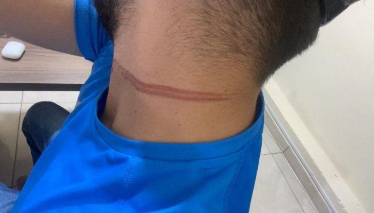 Una feroz marca quedó en el cuello del joven
