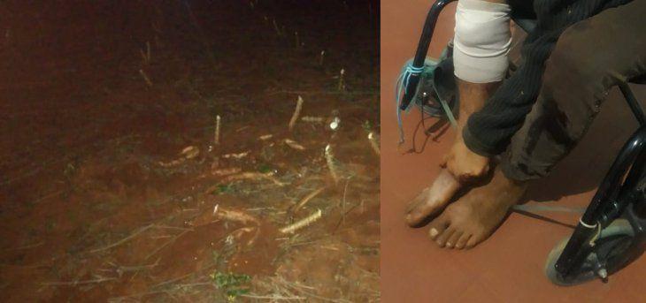 El adolescente herido en Cambyretá tuvo una fractura en la pierna derecha.