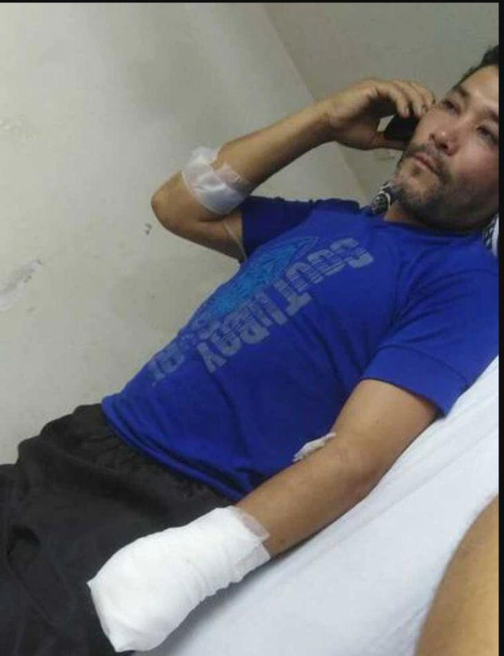 Raúl Palacios (38) se quedó sin su mano izquierda luego del ataque de un primo político tras los festejos de las elecciones
