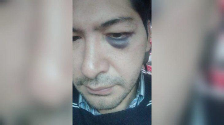 Óscar Mosqueda mostró sus fotos con el ojo izquierdo morado.
