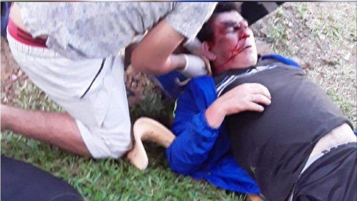 Américo Benítez quedó inconsciente tras la salvaje golpiza que recibió.